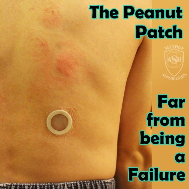 "Peanut Allergy Patch – the only ""Failure"" is Bad Reporting"